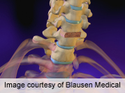 Wrong-level localization in spine surgey rare but still occurs