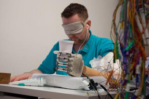 Amputee feels in real-time with bionic hand wired to nerves (w/ video)