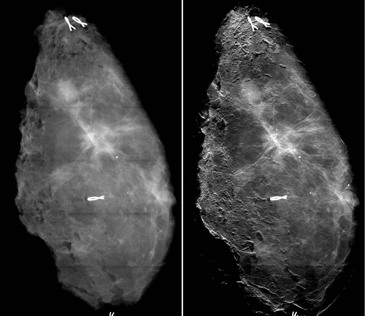 General Information on Mammography