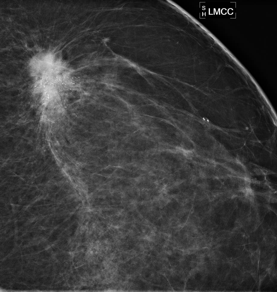 how to read mammogram images
