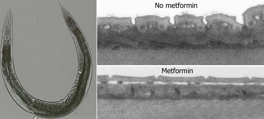 a study on the anti aging effect of metformin The most common treatment for type 2 diabetes – a generic drug called metformin – may do a lot more than just regulate insulin levels scientists studying its potential as an anti-aging pill.