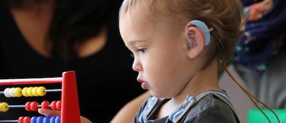 children with hearing impairment Impairments in hearing can occur in either or both areas, and may exist in only  one ear or in both ears generally, only children whose hearing.