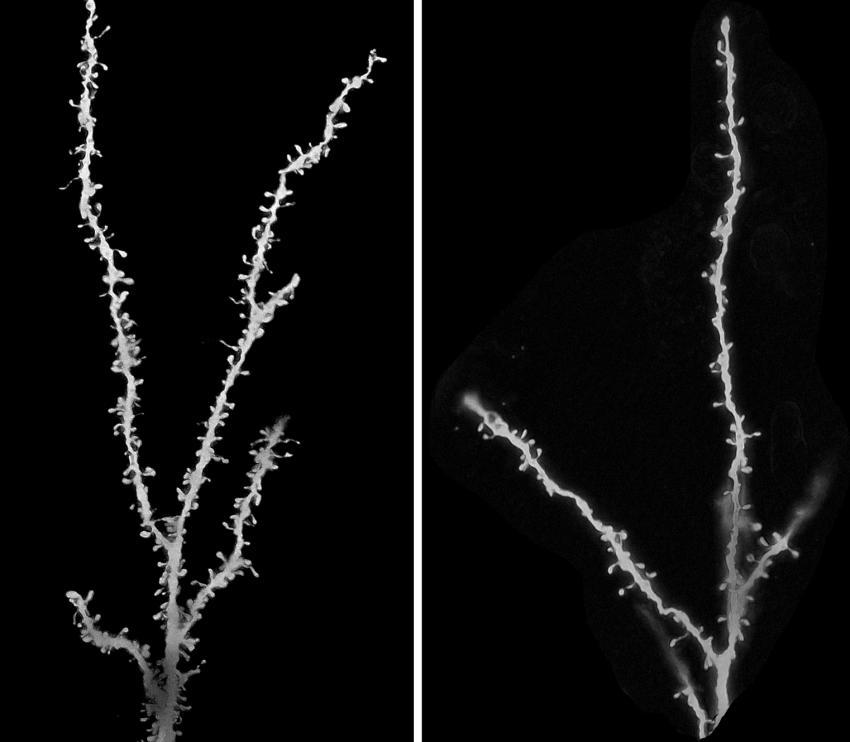这个图像显示自闭症患者的神经元(左)和对照组的神经元(右),神经元上的脊柱表明突触的位置。